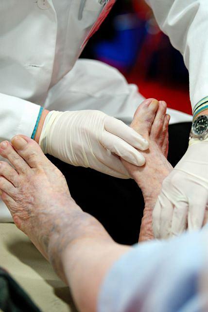 Zesp�l stopy cukrzycowej to jedno z powa�niejszych powik�a� cukrzycy