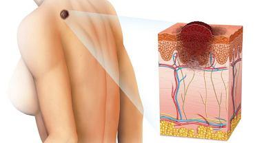 Czerniak na ciele oraz w powiększeniu: przekrój skóry
