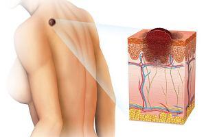 ABCDE czerniaka: pięć cech, które pozwolą go odróżnić od niegroźnej zmiany skórnej