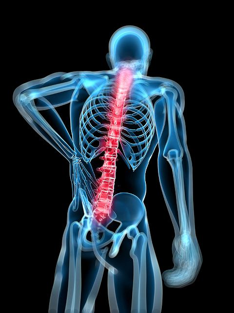 Spondylolisteza (ze�lizgni�cie kr�g�w)