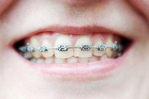 Proste zęby są zdrowsze