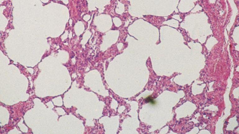 Rozedma płuc. Fragment tkanki płuc dotkniętych rozedmą: dobrze widoczne są pęcherze z powietrzem, powstałe w wyniku zniszczenia dużej części pęcherzyków płucnych