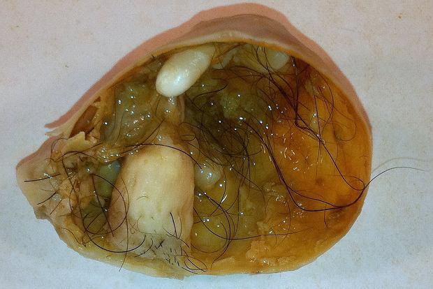 Torbiel dermoidalna na jajniku to łagodna odmiana potworniaka, która może wykształcić zęby i włosy