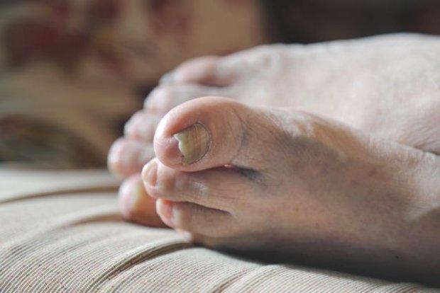 ��ty, br�zowy, a mo�e czarny? O czym m�wi zmiana koloru paznokcia?