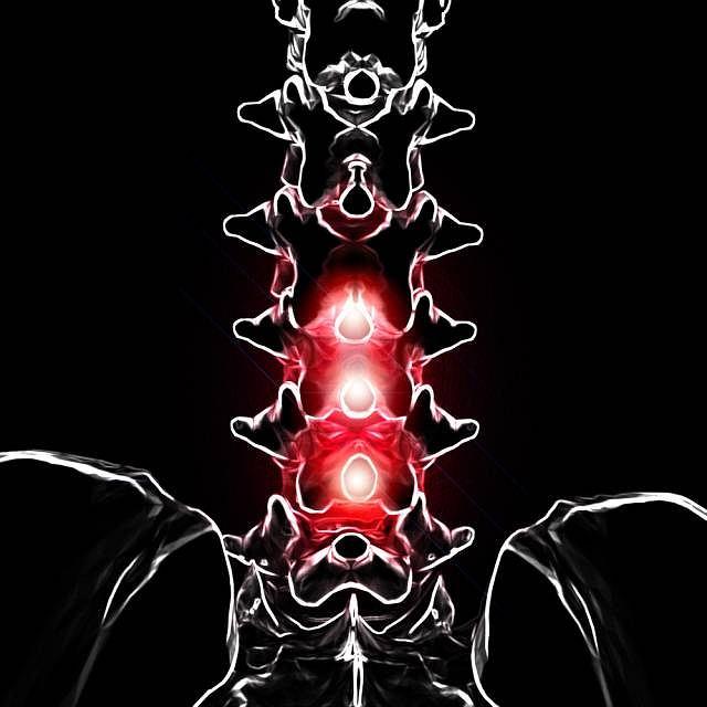 Stenoza, czyli ciasnota kanału kręgowego to jedna z przyczyn bólu w okolicy lędźwiowej