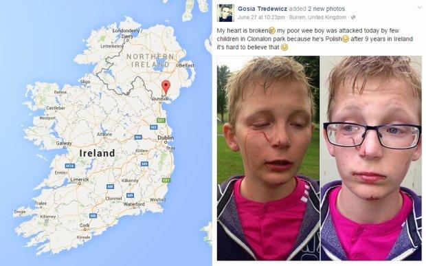 """11-latek pobity w Irlandii Północnej. Wyzywali go za to, że jest Polakiem. """"Jesteś polskim bękartem"""""""