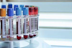Antygen raka płaskonabłonkowego (SCC-Ag)