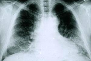 Samoistne włóknienie płuc (idiopatyczne włóknienie płuc) - przyczyny, objawy i leczenie