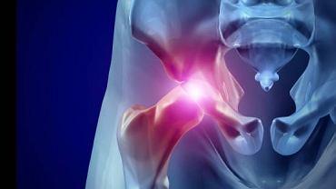 Trwający nawet kilka minut ból w stawie powinien zostać skonsultowany ze specjalistą