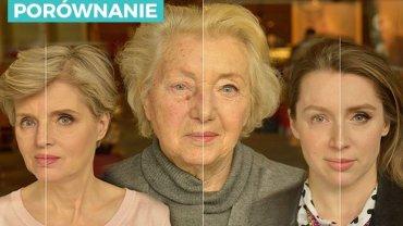 Przed i po, od lewej: Ewa, Alicja, Ola