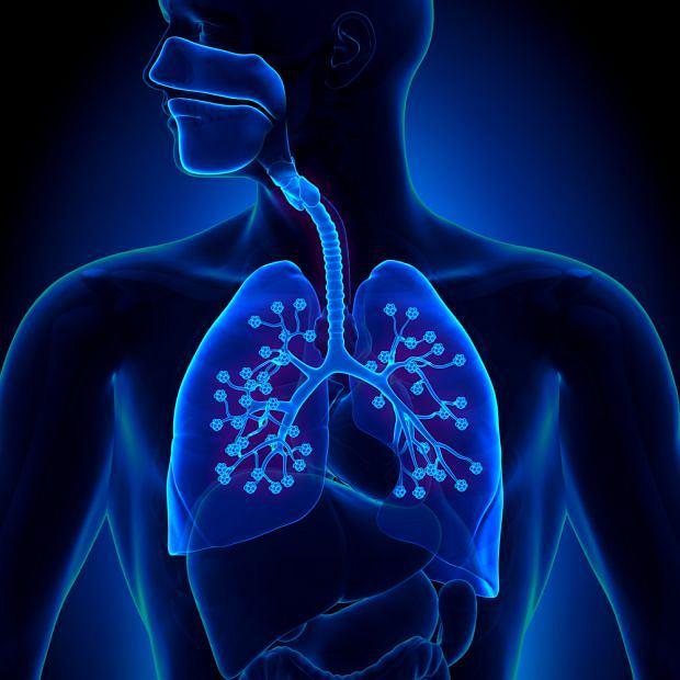 Gromadzenie się chłonki w jamie opłucnej to częste powikłanie u pacjentów pooperacyjnych