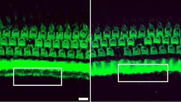 Fragment ucha wewnętrznego u myszy leczonych (po lewej) i nieleczonych (po prawej). U tych pierwszych wyraźnie widać rozwinięte i działające komórki rzęsate