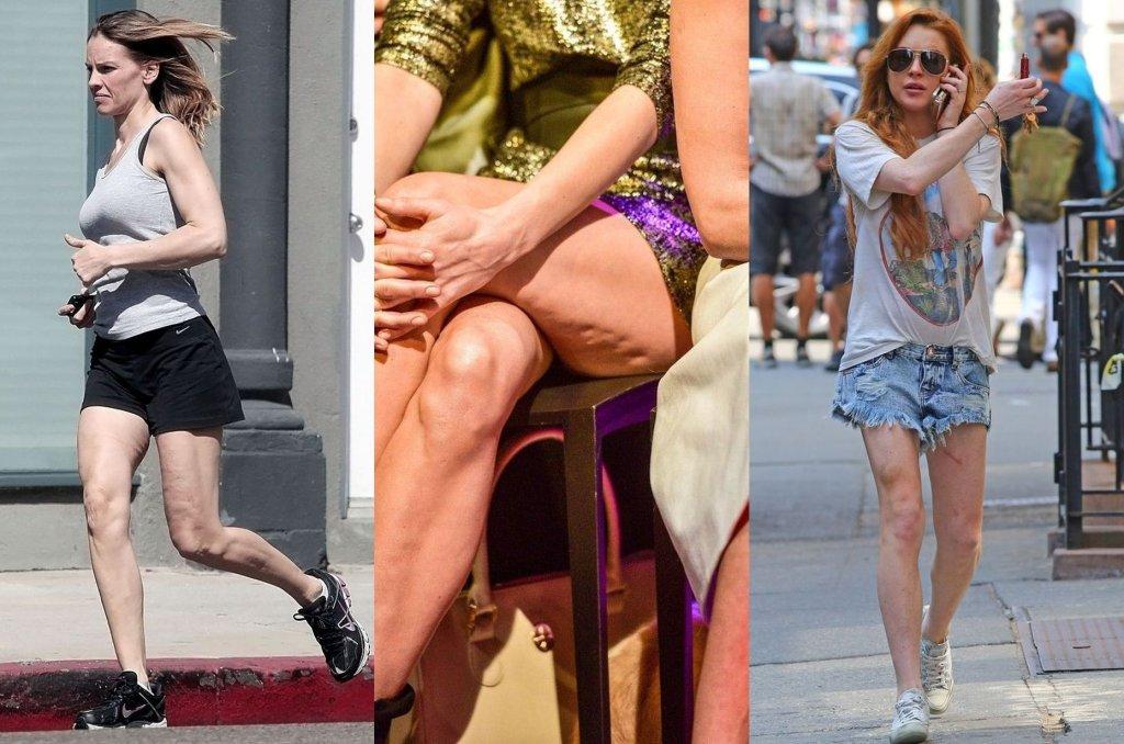 Jak się okazuje, wiek kobiety zdradzają nie tylko jej dłonie, ale też i nogi. Te gwiazdy wyglądają świetnie, niestety dobry efekt