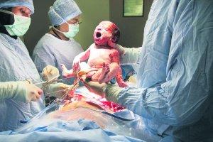 Lekarz i instrumentariuszka skazani. Zostawili chusty w brzuchu pacjentki