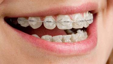 Niektóre aparaty ortodontyczne obok korekcji wad zgryzu mogą redukować zmarszczki mimiczne