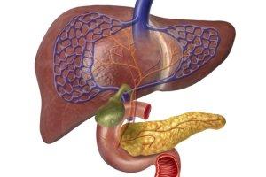 Zespół chylomikronemii - choroba metaboliczna