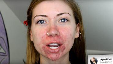 Crystal zna tricki, które natychmiast poprawiają wygląd skóry.