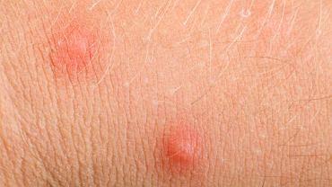 Niewielka wysypka to zazwyczaj pierwszy objaw zakażenia