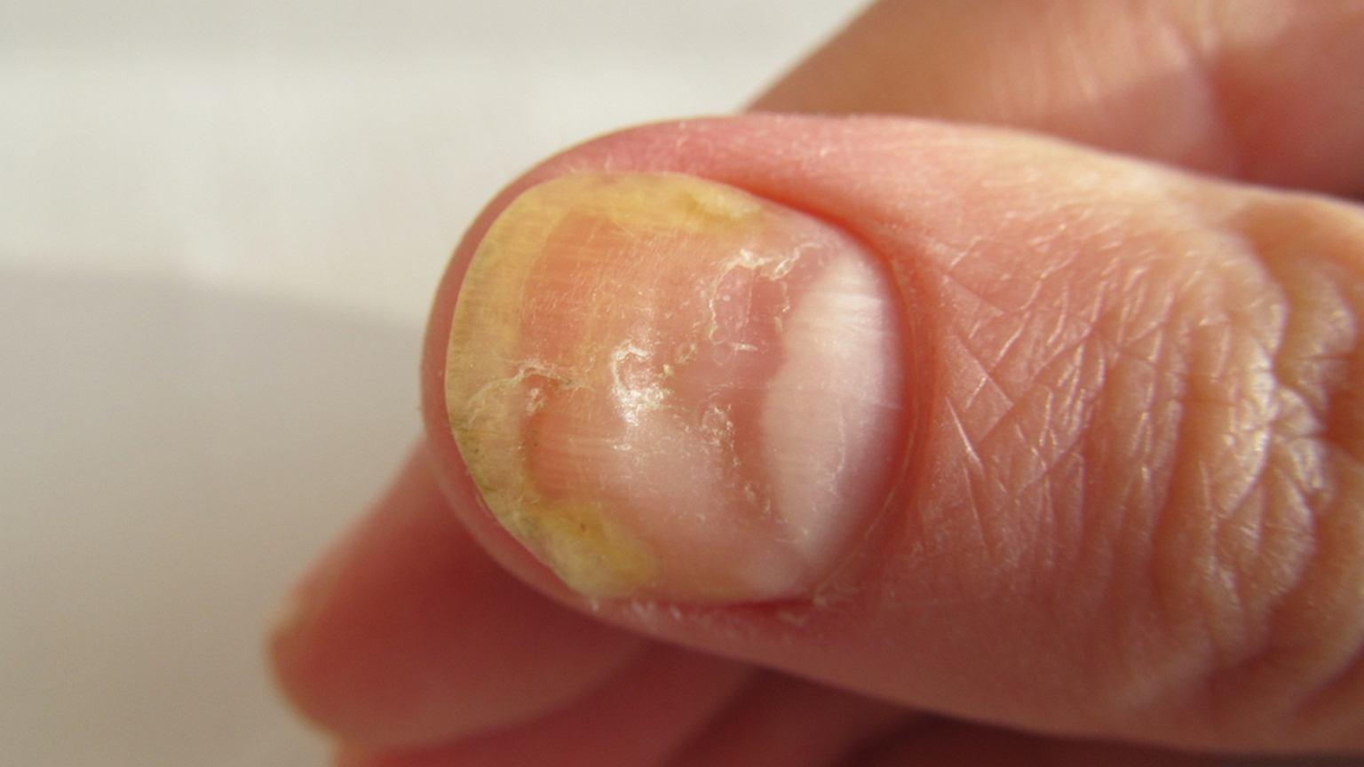 żółte Paznokcie Przyczyny Jak Leczyć Zapobieganie