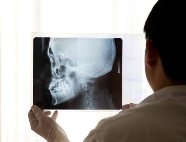 Plagiocefalia to rodzaj deformacji czaszki, kt�ra pojawia si� u choruj�cych na zesp� Aperta i Crouzona
