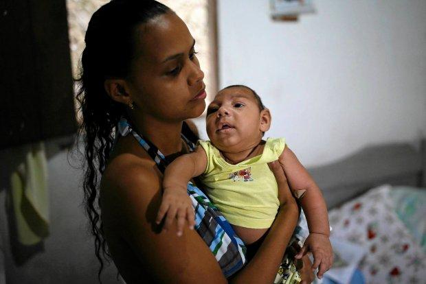 Dzieci z wywo�an� wirusem Zika mikrocefali�