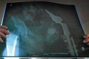 Po co szpitalowi dwa skierowania na operacj� biodra