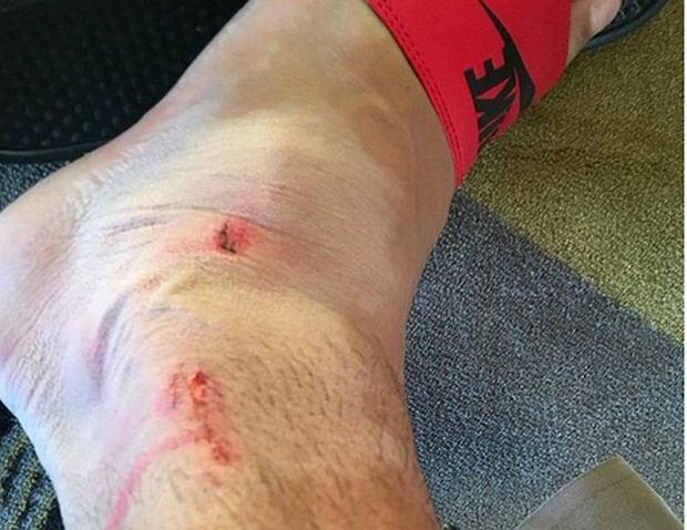 Noga Samiego Khediry po meczu z Polską