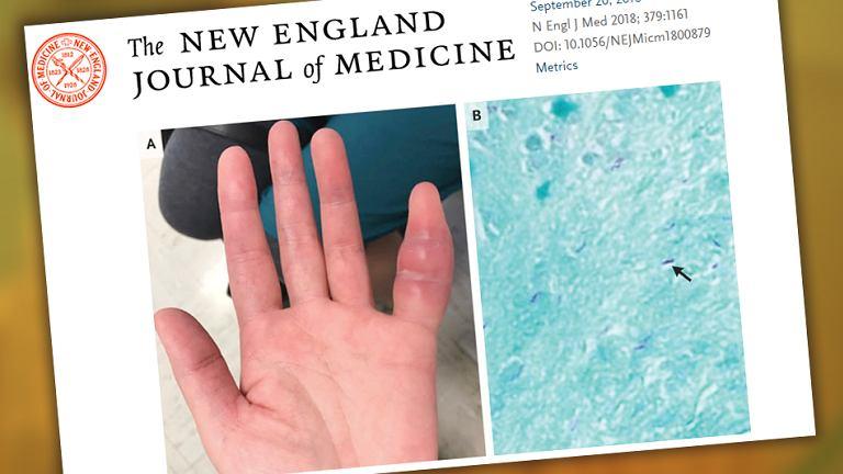 Palec zainfekowany gruźlicą