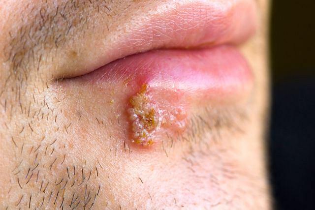 HSV - wirus opryszczki pospolitej