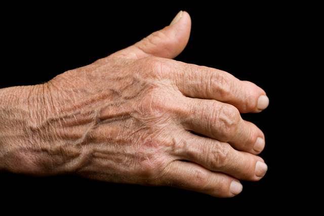Artretyzm jest chorobą przewlekłą i nieuleczalną