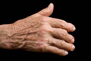 Artretyzm - choroba reumatyczna, która wcześniej atakuje mężczyzn