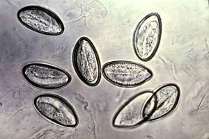 Zapomniane pasożyty, czyli jak pozbyć się wszy i owsików