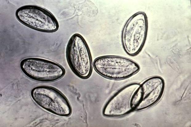Jajeczka owsika ludzkiego