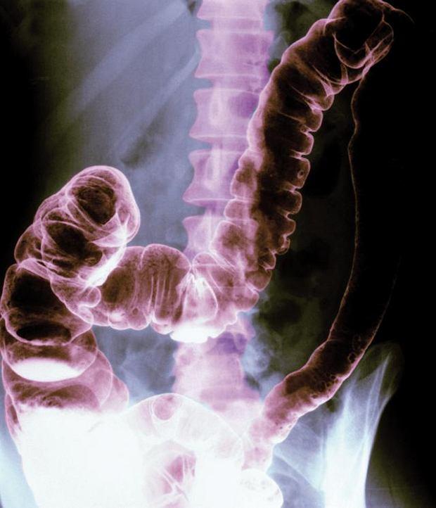 Zesp� jelita wra�liwego. Zdj�cie rentgenowskie przedstawia sztuczne zabarwienie brzucha oraz okr�nic� i tkank� kostn� kr�gos�upa. Stwierdzenie zespo�u jelita dra�liwego jest niezwykle skomplikowane, poniewa� ta dolegliwo�� nie ma przyczyn organicznych i ma bardzo r�norodne objawy, kt�re s� odmienne u ka�dego pacjenta