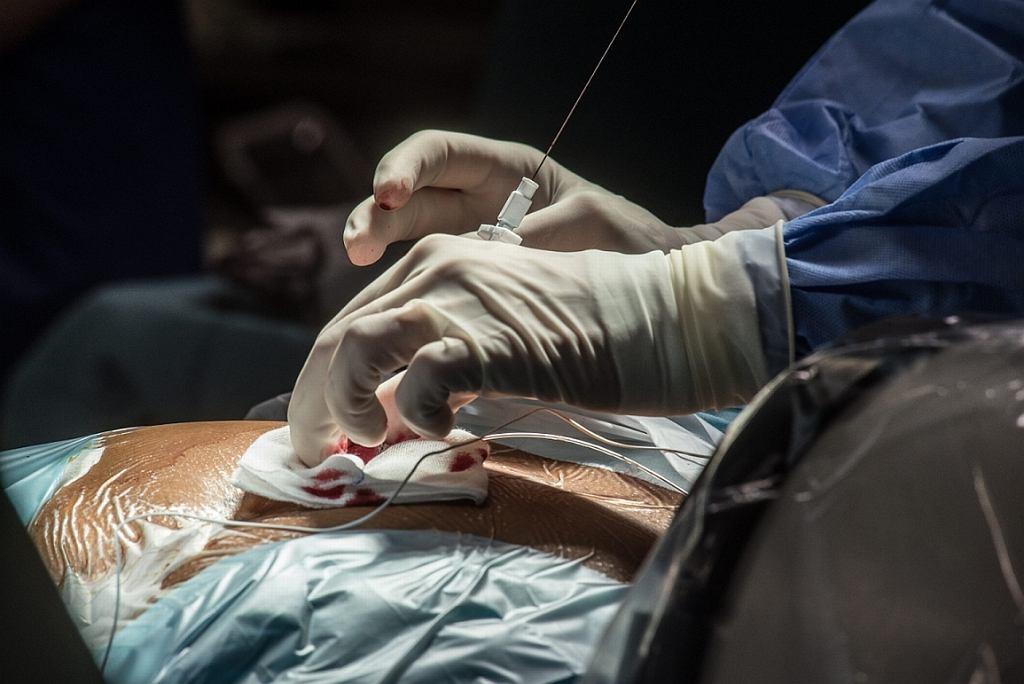 Operacja (fot. Kornelia Głowacka-Wolf/Agencja Gazeta)