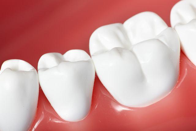Zdrowe dziąsła mają różowy kolor i mocno przylegają do zębiny
