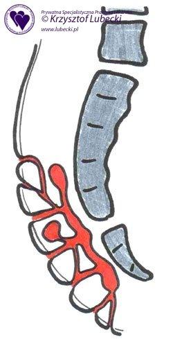 Torbiel krzyżowo-ogonowa, schorzenie zaawansowane