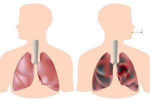 Widok płuc palacza - najlepsza motywacja do rzucenia palenia