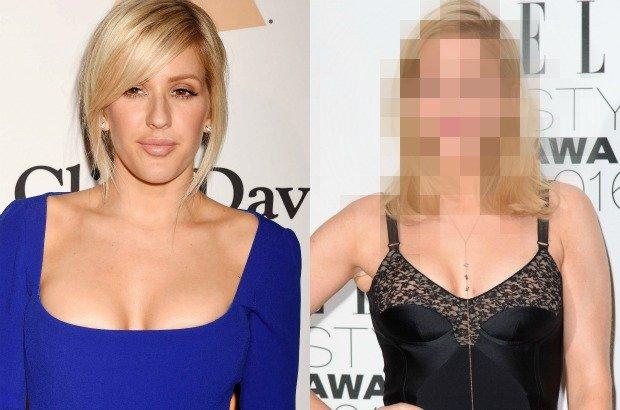 Ellie Goulding, co zrobiłaś z twarzą?! -  krzyczały nagłówki po rozdaniu nagród Grammy. Piosenkarka powiększyła usta, a efekt nie spodobał się fanom i mediom. Jak wygląda teraz?