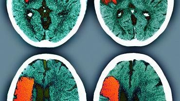 Udar na tomografii komputerowej. Obszary niedokrwione na czerwono