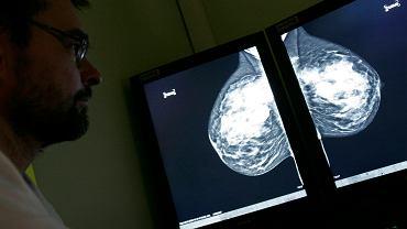 49-letnia kobieta z zaawansowaną postacią raka z przerzutami została całkowicie wyleczona dzięki nowej metodzie immunoterapii (zdjęcie ilustracyjne przedstawia radiologa analizującego wyniki mammografii, która jest jednym z podstawowych badań pozwalających wykryć raka piersi)