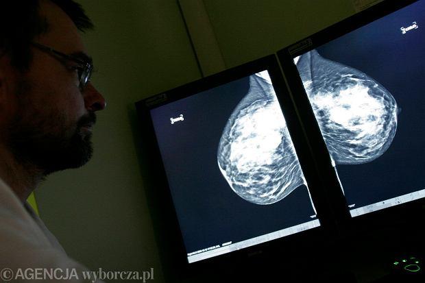 Cud? Nie, nauka. Dzięki nowej terapii lekarze uratowali 52-latkę z rakiem piersi, której zostały tygodnie życia