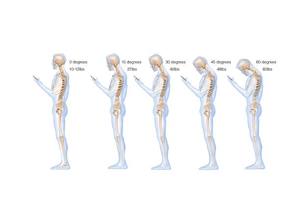 Co telefon komórkowy robi z naszym ciałem? 'Syndrom SMS-owej szyi to globalna epidemia!'