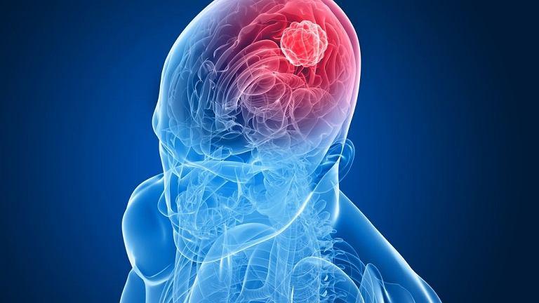 Mimo że rak mózgu nie jest prawidłową nazwą, to jej używamy najczęściej.