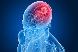 Rak mózgu - przyczyny, objawy, leczenie