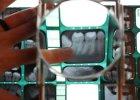 Pantomogram (zdj�cie panoramiczne, panorama z�b�w)