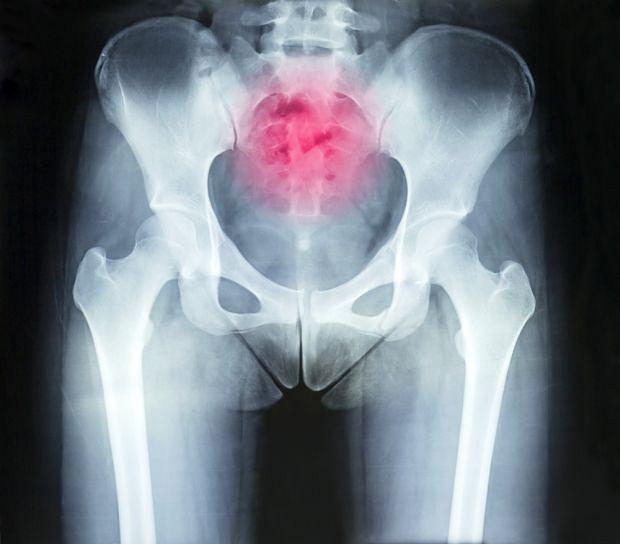 Zmiany i ból w obrębie kości ogonowej to najczęściej konsekwencja niefortunnego upadku