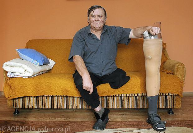 Jak uratowa� nogi przed mia�d�yc� i cukrzyc�