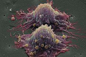 Macierzyste kom�rki rakowe - jak je dopadniemy, wygramy z rakiem