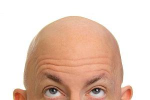 Łysina to największy kompleks polskich mężczyzn. W jakich krajach jest najwięcej łysych?